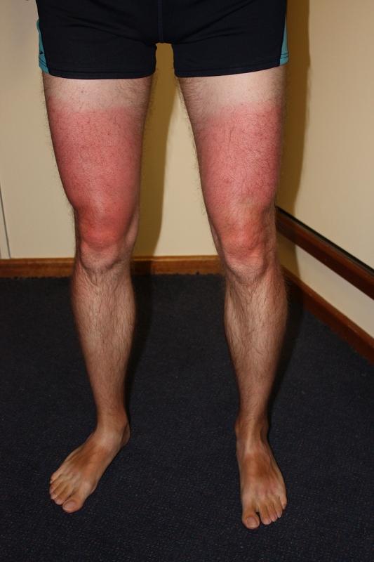 verbrande benen